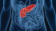 Пересадка поджелудочной железы — пример на фото 1