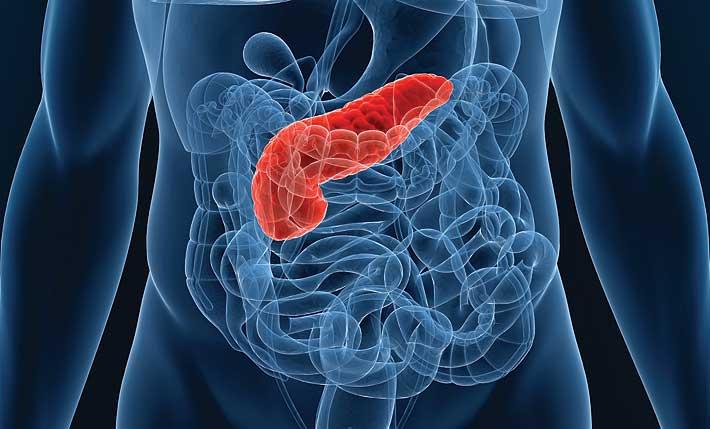 Пересадка поджелудочной железы - пример на фото 1